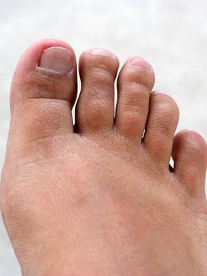 How To Fix Toenails That Curve : toenails, curve, Flatten, Curved, Toenail