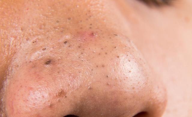 你的粉刺是粉刺嗎?對抗肌膚粉刺怎麼處理?從根源探討。幫你一同長期抗戰! - CP值