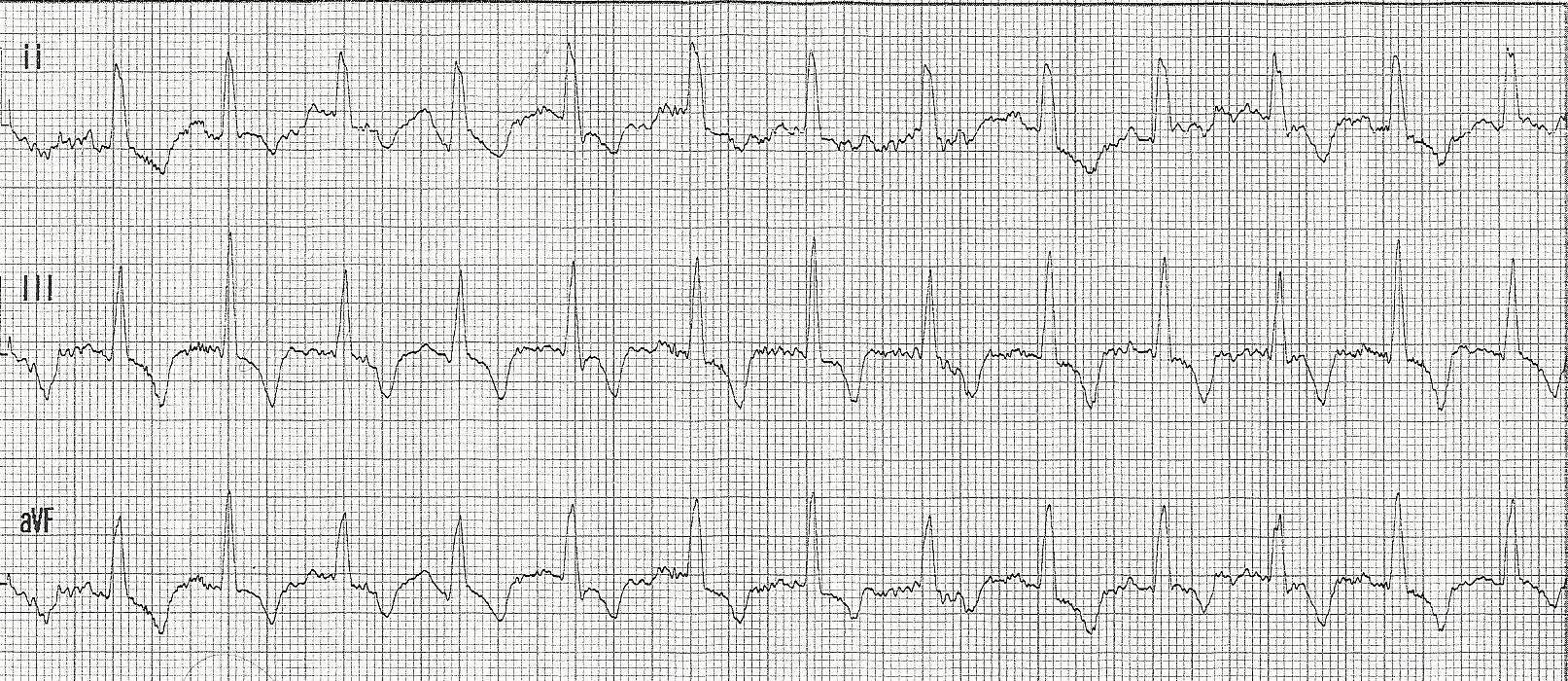 EKG Case Study #10: Mid-60s Male with Pulmonary Edema