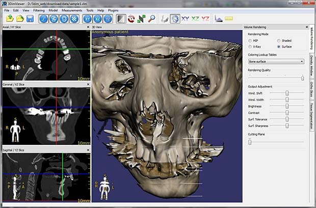 RadiAnt DICOM Viewer 4.6.9 license With full Keygen