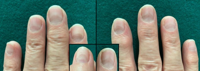 'Covid Nails' - These Changes In Your FingerNails Helps in Detecting Coronavirus