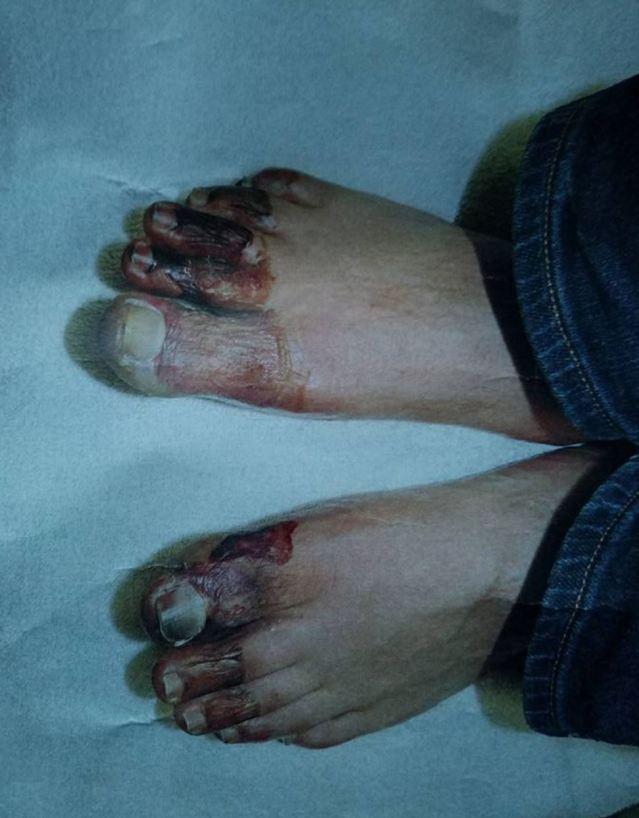 frozen toes