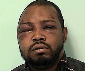 The victim/Suspect after the beating