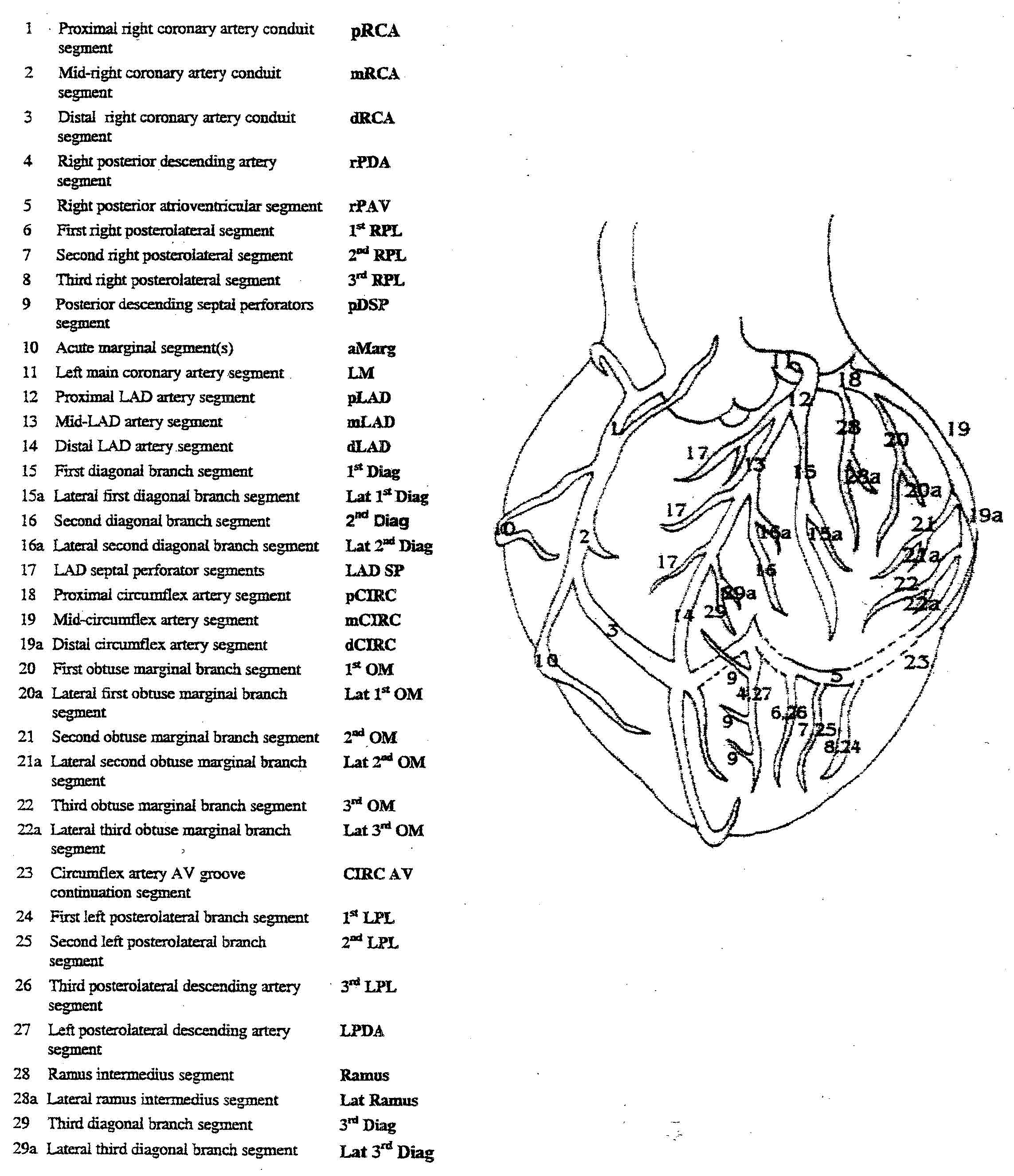 coronary arteries diagram branches 2002 subaru forester exhaust acute syndromes acs crashing patient