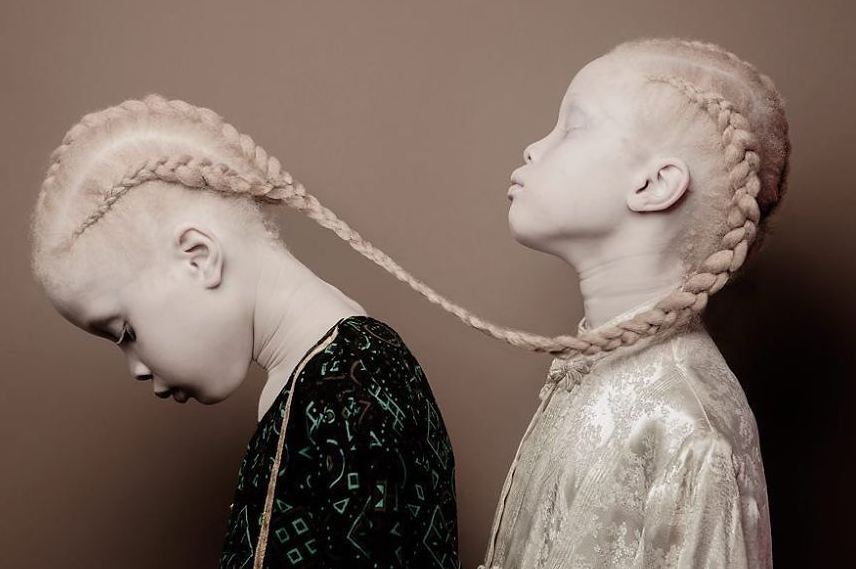 Albino Twins From Brazil Are Taking The Fashion Industry By Storm With Their Unique Beauty 16