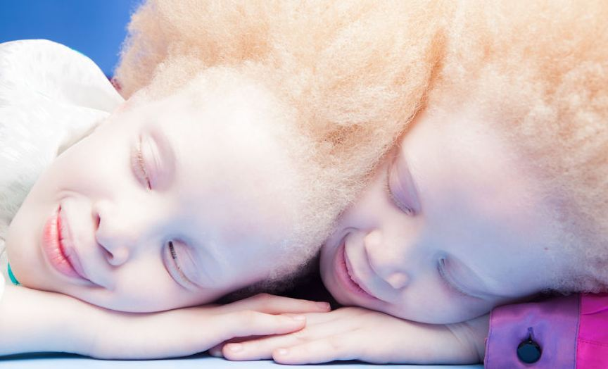 Albino Twins From Brazil Are Taking The Fashion Industry By Storm With Their Unique Beauty 2