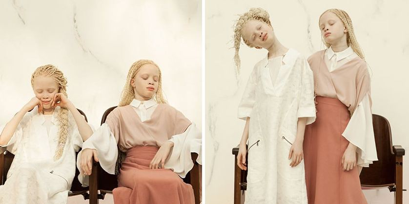 Albino Twins From Brazil Are Taking The Fashion Industry By Storm With Their Unique Beauty 3