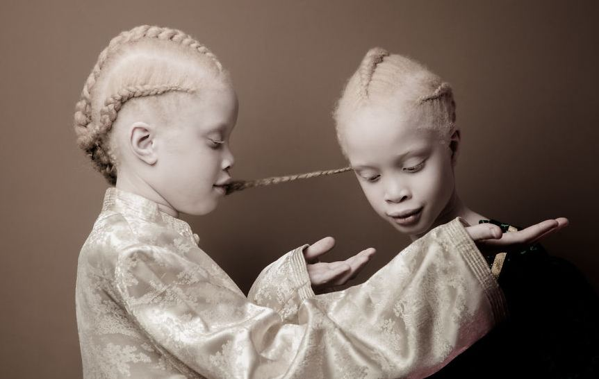 Albino Twins From Brazil Are Taking The Fashion Industry By Storm With Their Unique Beauty 4