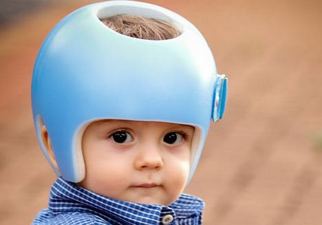 Why does Baby Wear Helmet