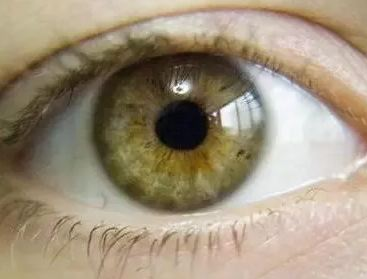 Difference between Hazel and Amber Eyes