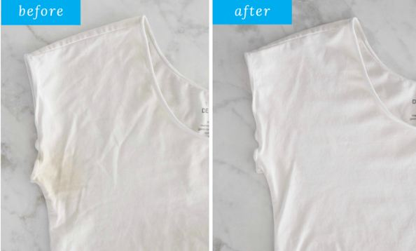 How to Get Yellow Bleach Stains out of White Clothes