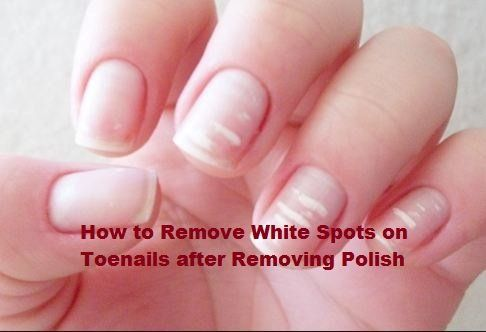 How to Remove White Spots on Toenails after Removing Polish