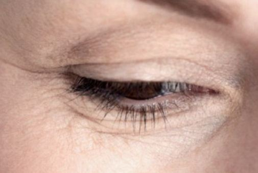 How to Get Rid of Under Eye Creases
