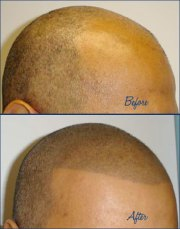 tattoo balding heads