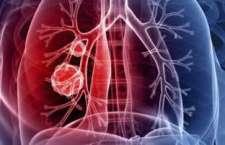 O afatinibe (Giotrif®) é um tratamento de 2ª geração (evolução da primeira geração de medicamentos) capaz de impedir que as células cancerígenas continuem se multiplicando.