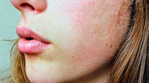 Pessoas com muitas pintas no corpo devem fazer acompanhamento frequente com dermatologista