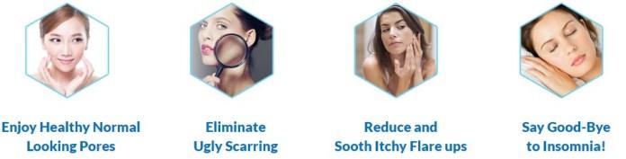 Euzema Skin Relief