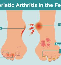 what psoriatic arthritis does to your feet and 6 ways to keep them healthy [ 2400 x 1600 Pixel ]