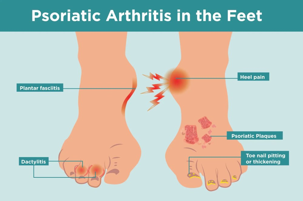medium resolution of what psoriatic arthritis does to your feet and 6 ways to keep them healthy