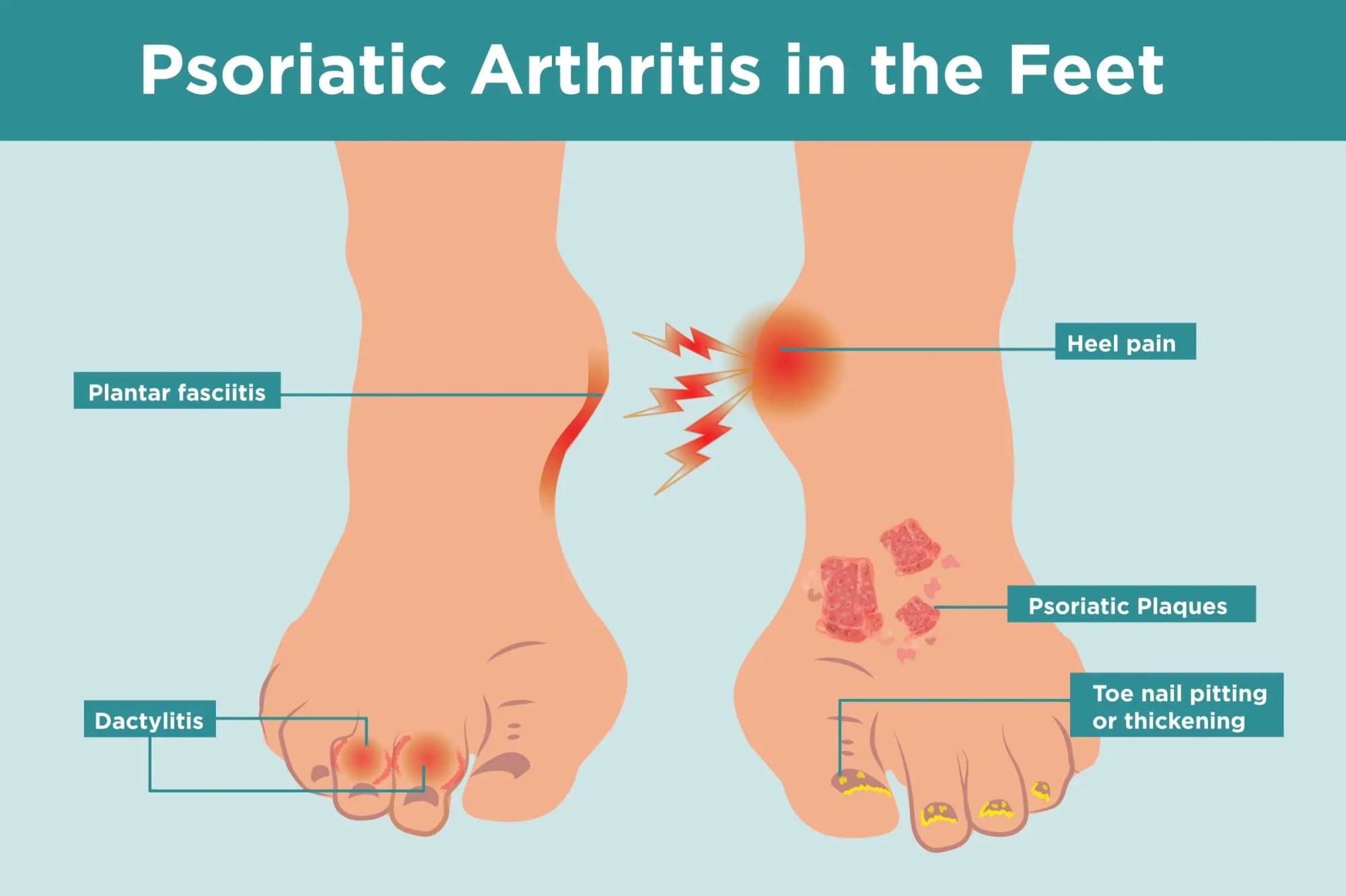 hight resolution of what psoriatic arthritis does to your feet and 6 ways to keep them healthy