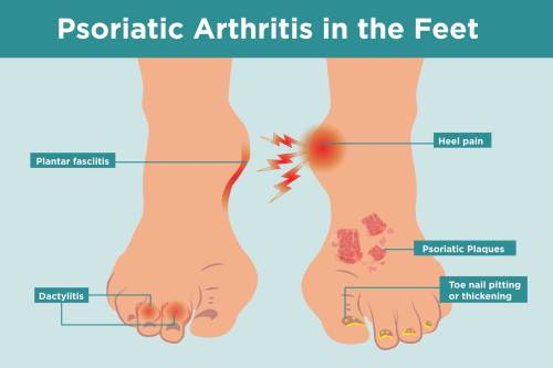 small resolution of what psoriatic arthritis does to your feet and 6 ways to keep them healthy