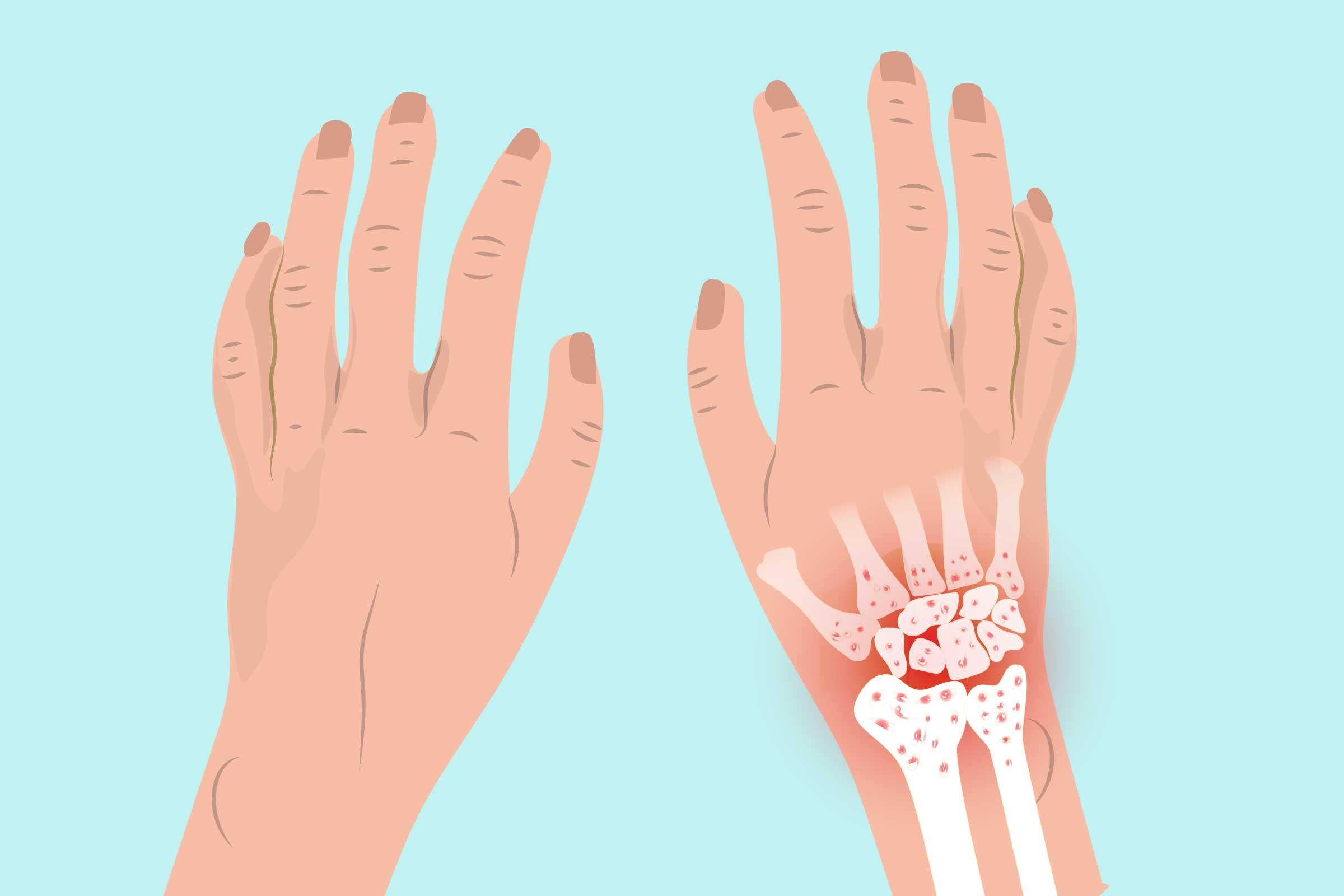 Type Of Bones In Hand