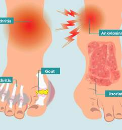 how arthritis strikes your feet and 11 ways to heal your arthritis foot pain [ 2400 x 1600 Pixel ]