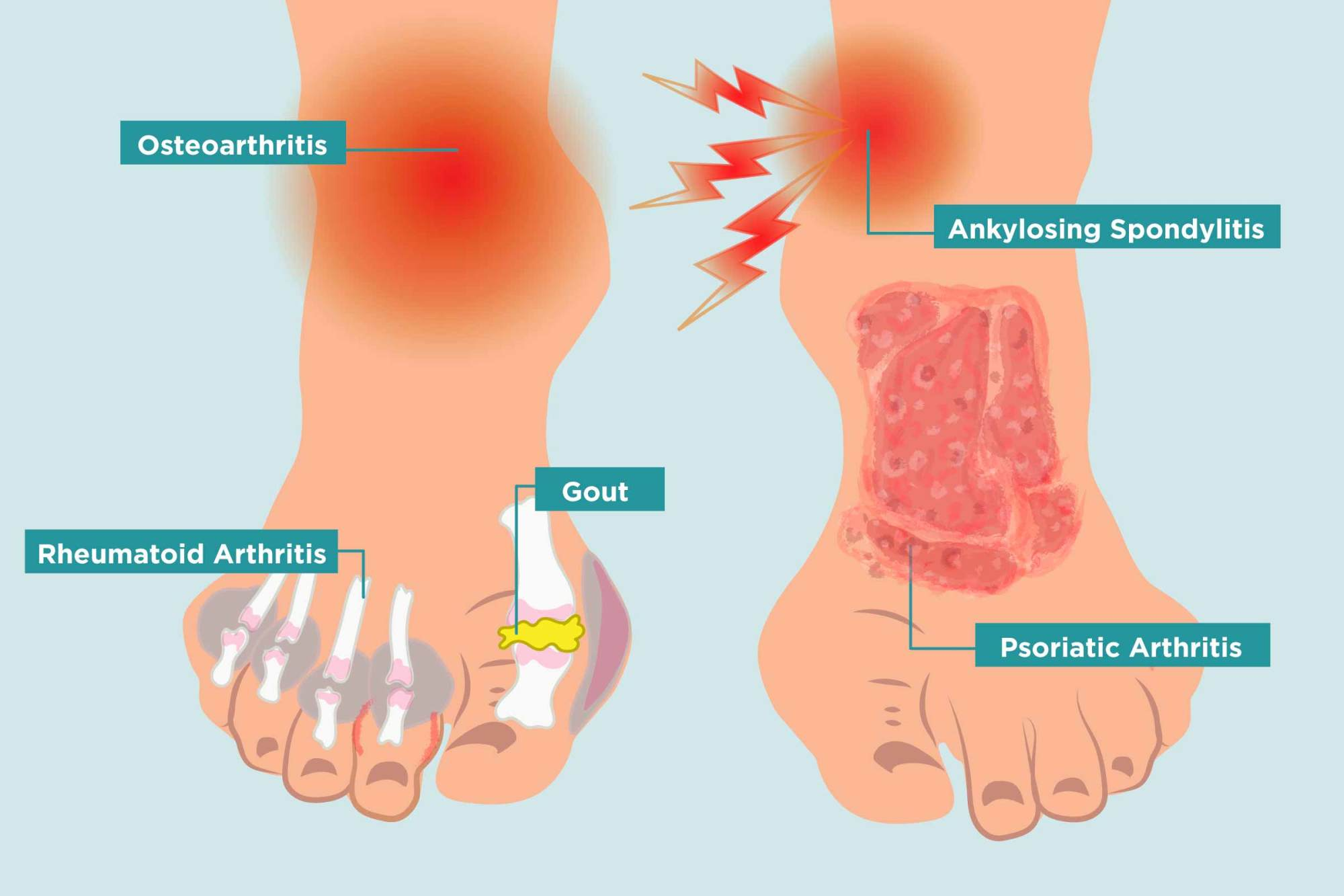 hight resolution of how arthritis strikes your feet and 11 ways to heal your arthritis foot pain