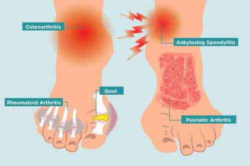 small resolution of how arthritis strikes your feet and 11 ways to heal your arthritis foot pain