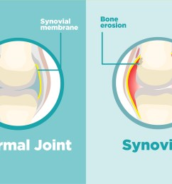 what is synovitis and how does it affect arthritis  [ 2400 x 1600 Pixel ]