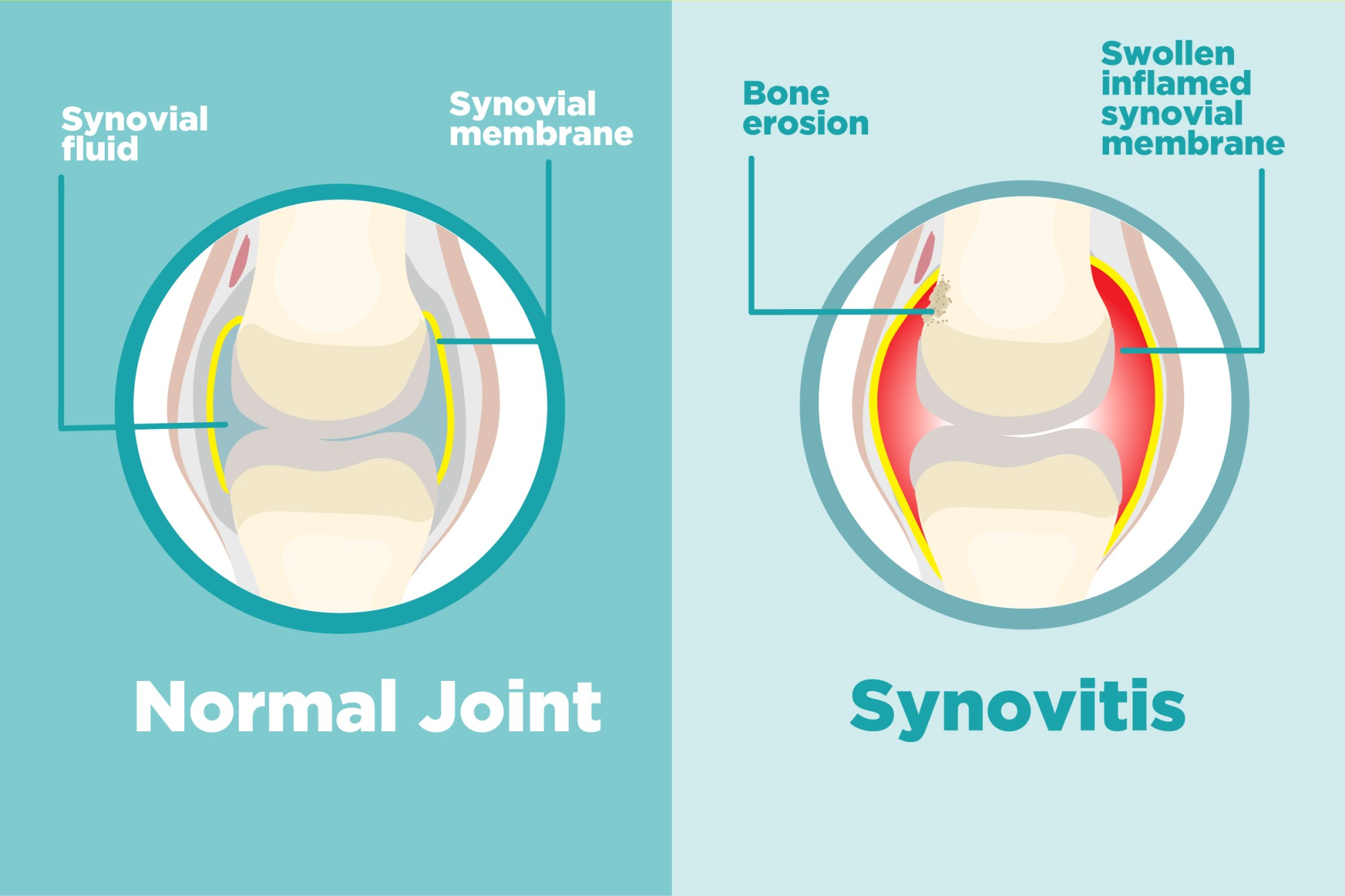 hight resolution of what is synovitis and how does it affect arthritis