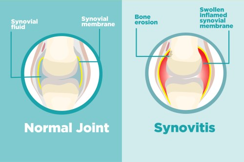 small resolution of what is synovitis and how does it affect arthritis
