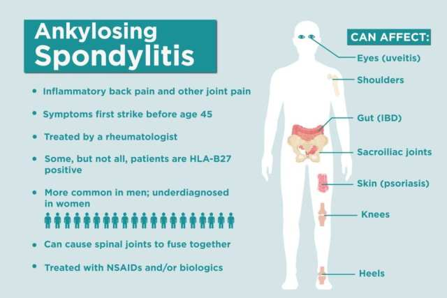 Ankylosing Spondylitis Facts