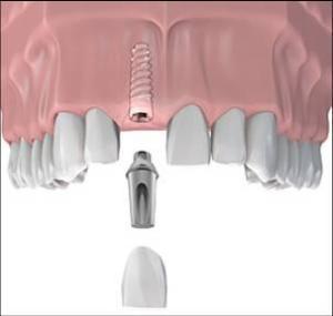 implants-in-tustin-ca