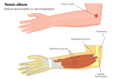 Best Treatment for Elbow pain: Tennis elbow Creekside Chiropractic