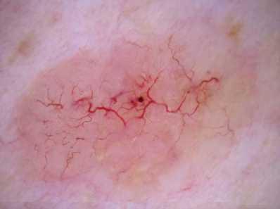 tumori basocellulari della pelle