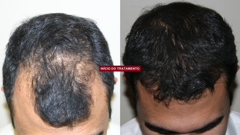 Hairloss Blocker inicio do tratamento