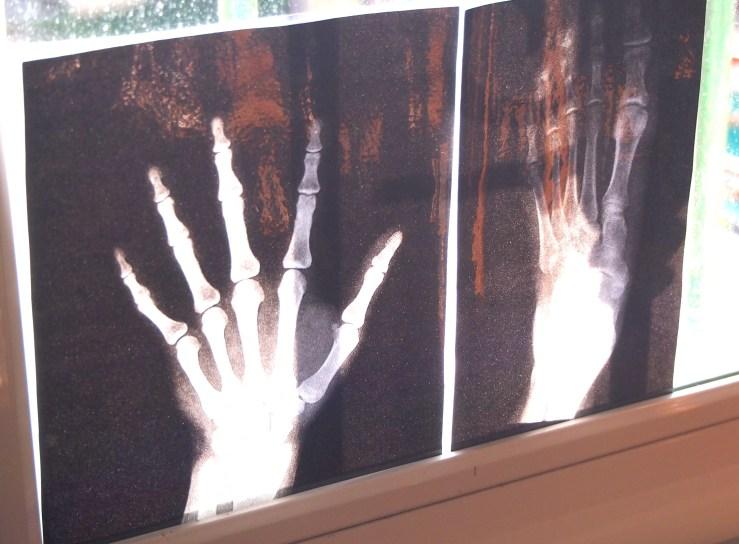 Radiografia imprimida y plastificada en la ventana