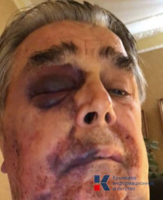 В Крыму избили и ограбили премьера Крыма украинских времен Анатолия Франчука