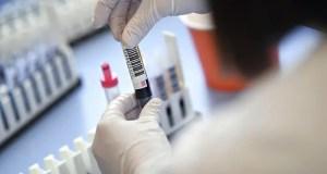 Хроника коронавирусной инфекции в России. «Плюс» 1 175 заболевших