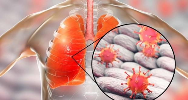 Коронавирус – коронавирусом, а по цифрам внебольничная пневмония в Крыму пострашнее будет