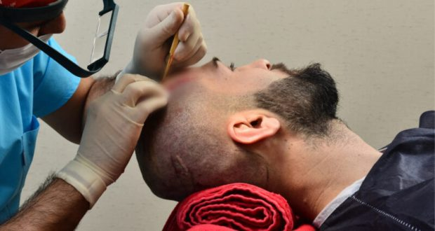 Трансплантация волос в Турции