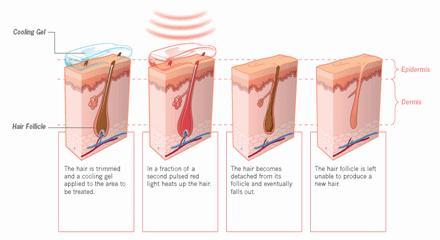 pilonidal cyst diagram & pilonidal cyst pictures surgery removal  : pilonidal cyst diagram - findchart.co
