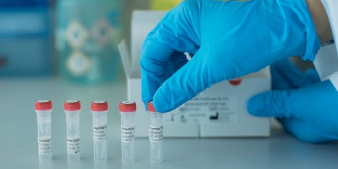 Alerta presunto caso de coronavirus en El Cardonal