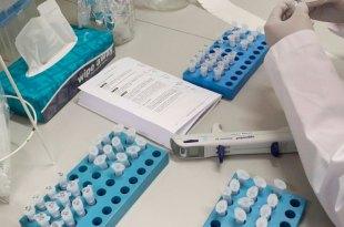 En Hidalgo se han descartado 33 casos de Coronavirus