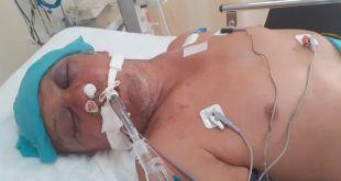 Buscan a familiares de un hombre atropellado en Tulancingo