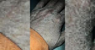 Enfermera muestra estragos del látex en su mano; se hace viral