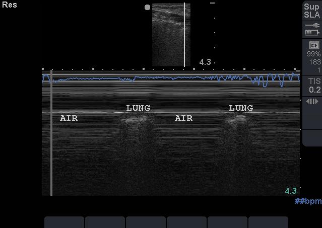 Screen Shot 2016-12-14 at 08.28.35.png