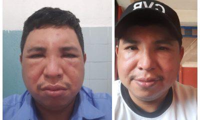 El bombero mostró en sus redes sociales las consecuencias de una picadura de abeja africana, en Cobán. (Foto: Cortesía)