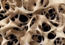 20 octombrie: Ziua internaţională a osteoporozei